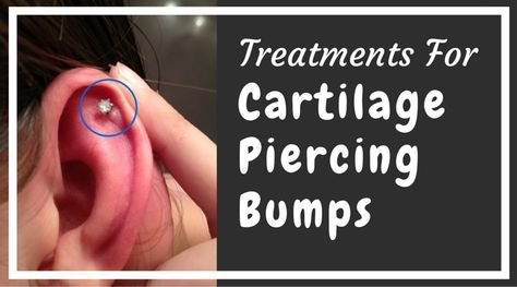 One of the most common piercing problems I get asked about. So I thought it was time to lay out all the treatments for this problem. All in one place!