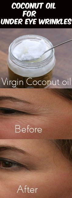 How Coconut Oil Works for Under Eye Wrinkles? Wrinkles appear when your skin loses elasticity or when it becomes dry. As mentioned, anti-microbial, antibacterial and emollient (moisturizers) properties housed in coconut oil hydrates the skin and enhance collagen production
