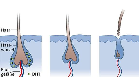 #Haarausfall beim Mann: Ursachen