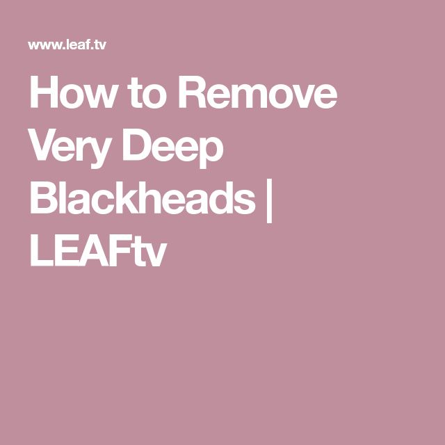 How to Remove Very Deep Blackheads | LEAFtv