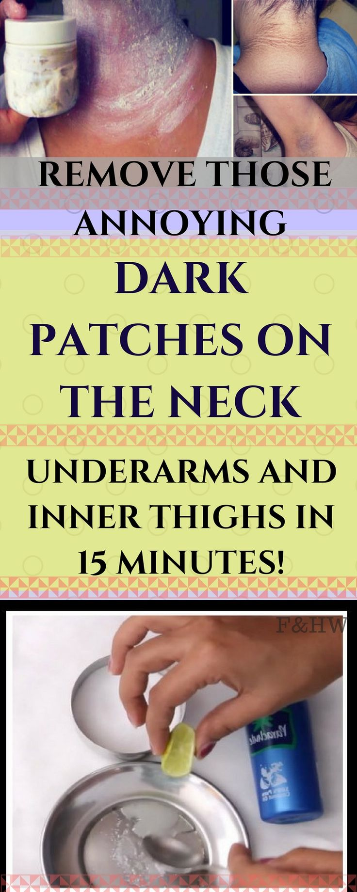 Remove Those Annoying Dark Patches on The Neck, Underarms and Inner Thighs in 15 Minutes!