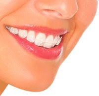 Salud Odontologica Integral: LA IMPORTANCIA DE LA ORTODONCIA