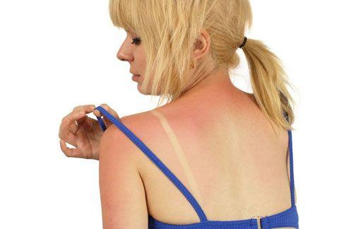 Primeros auxilios para quemaduras solares