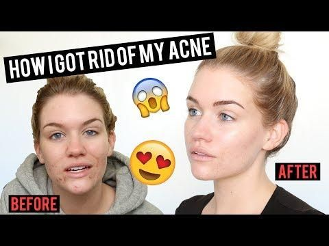3 PRODUCTS THAT CHANGED MY SKIN
