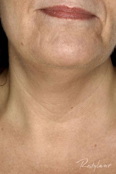 FØR: Halsen har tynn og sårbar hud. Restylane kan enkelt gjøre den yngre.