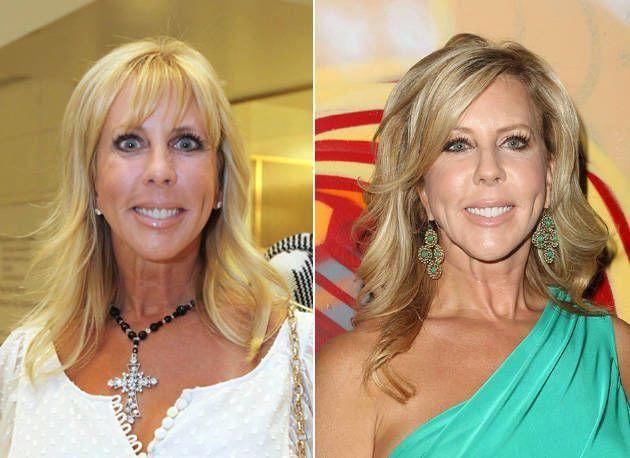 Vicki Gunvalson Before Plastic Surgery | ... Photo: Vicki Gunvalson: Before and ...