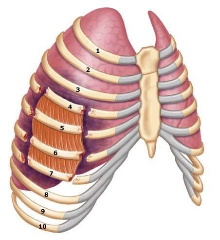 Flail Chest Example