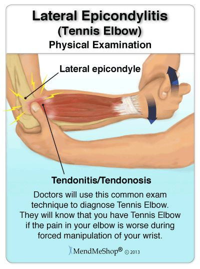 69 best Tennis Elbow and Golfers Elbow images on Pinterest ...
