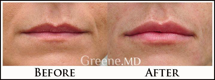 Natural lip augmentation with dermal filler injection