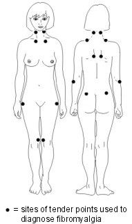 Fibromyalgia causes pains and tenderness in many areas of the body, and tiredness