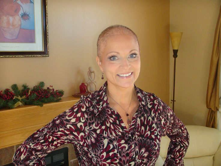 women bald living thru cancer | My Journey Through Breast Cancer: Wigging out!