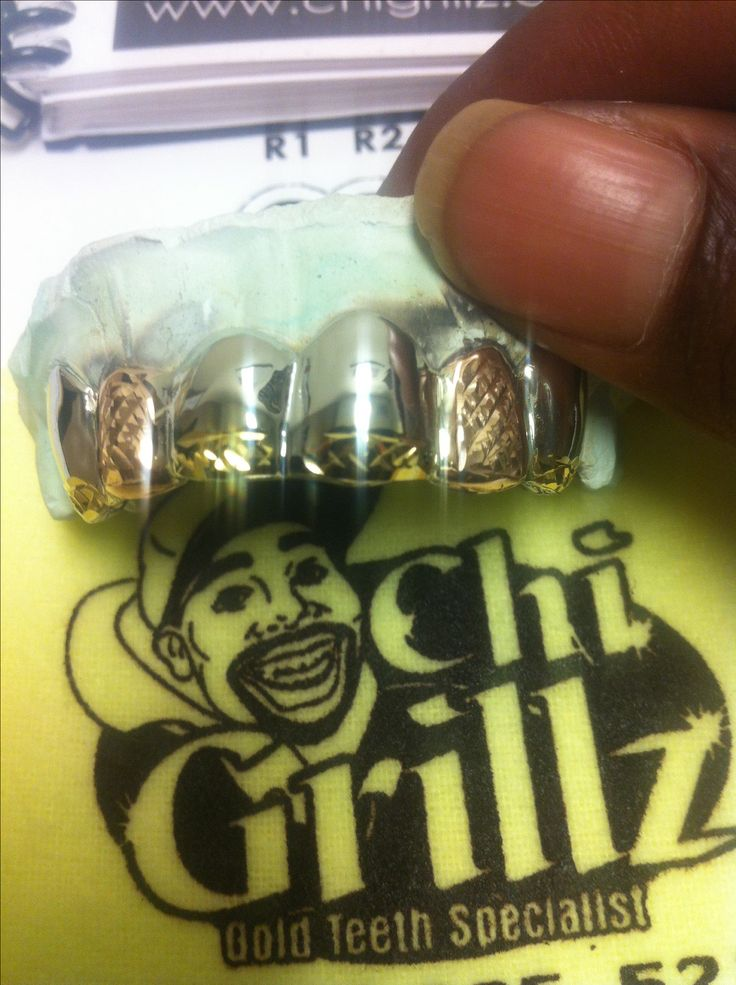3 tone diamond cut grills.. White Gold grillz with yellow gold and rose gold diamond cuts.. Customized as the client wanted it.  This is a beauty one of my faves.  #chigrillz #goldteeth #grills #grillz #diamondcut  http://www.chi-grillz.com & http://www.chigrillz.com