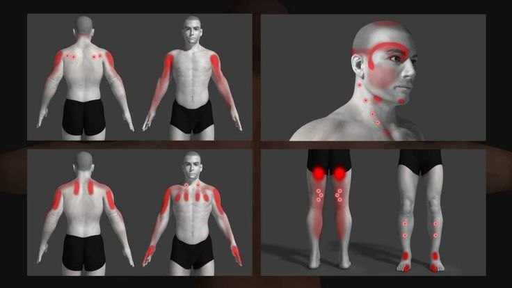 Very cool video explaining trigger points and their effect on the body. Dealing with Trigger Point issues yourself? Call us today to learn more about Dry Needling Trigger Point Therapy 414-858-1363