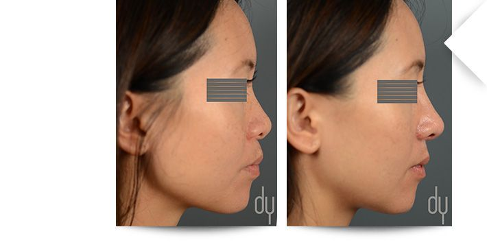 Before and After Asian rhinoplasty to achieve greater tip projection and refinement, and dorsal augmentation.