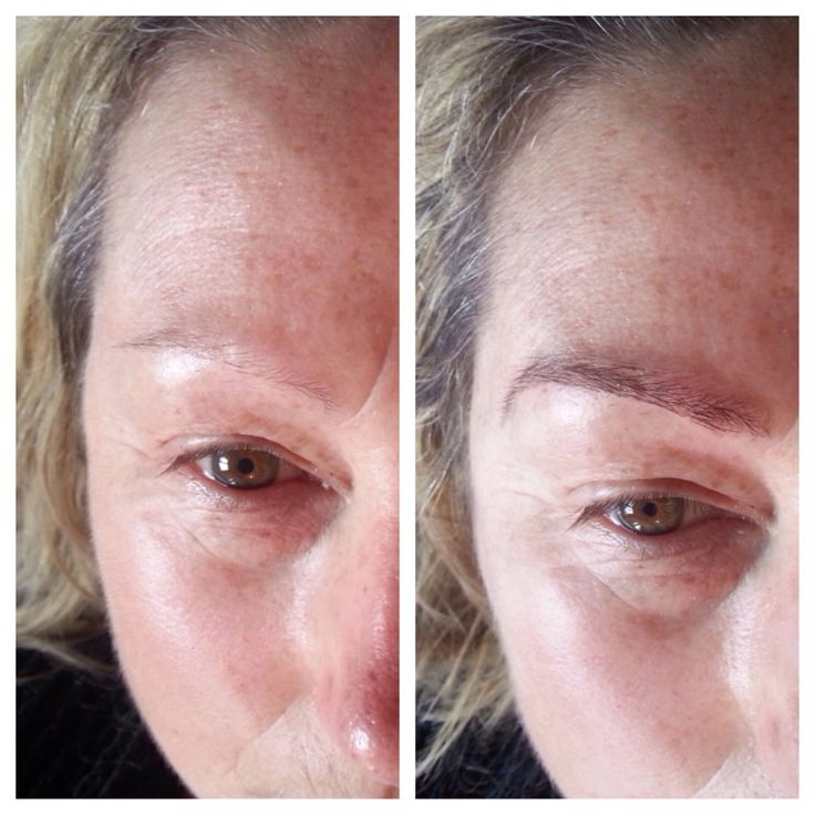Eyebrow reconstruction with extensions