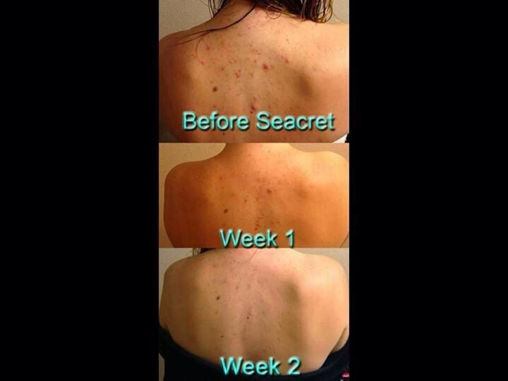 Say goodbye to bacne!! These results from changing to Seacret Mud Soap