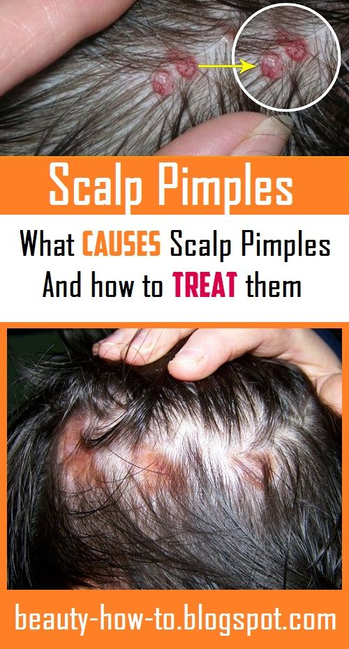 Scalp Pimples: What Causes them and how to Treat t…