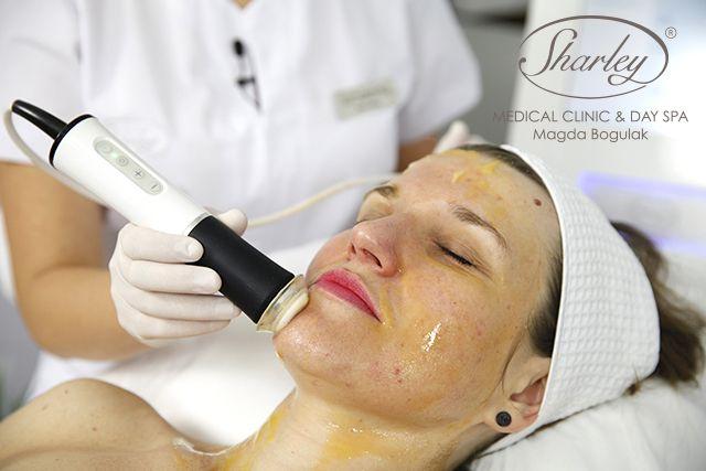 Zabieg Geneo™ to przełomowa technologia firmy Pollogen, która wykorzystując naturalne mechanizmy organizmu, zapewnia uzyskanie jednocześnie 3 efektów pielęgnacyjnych na skórę twarzy:   -  Złuszczanie zewnętrznej warstwy skóry  -  Wchłanianiepodstawowych składników rewitalizujących skórę  -   Naturalne dotlenienie skóry od wewnątrz  Po zabiegu skóra jest doskonale oczyszczona, dotleniona i świetlista.   Zabieg możesz wykonać w: Instytucie Sharley www.sharley.pl
