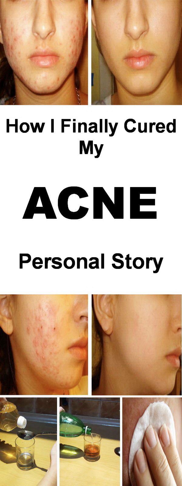 The best acne remedies. #acneremedies #naturalhealing