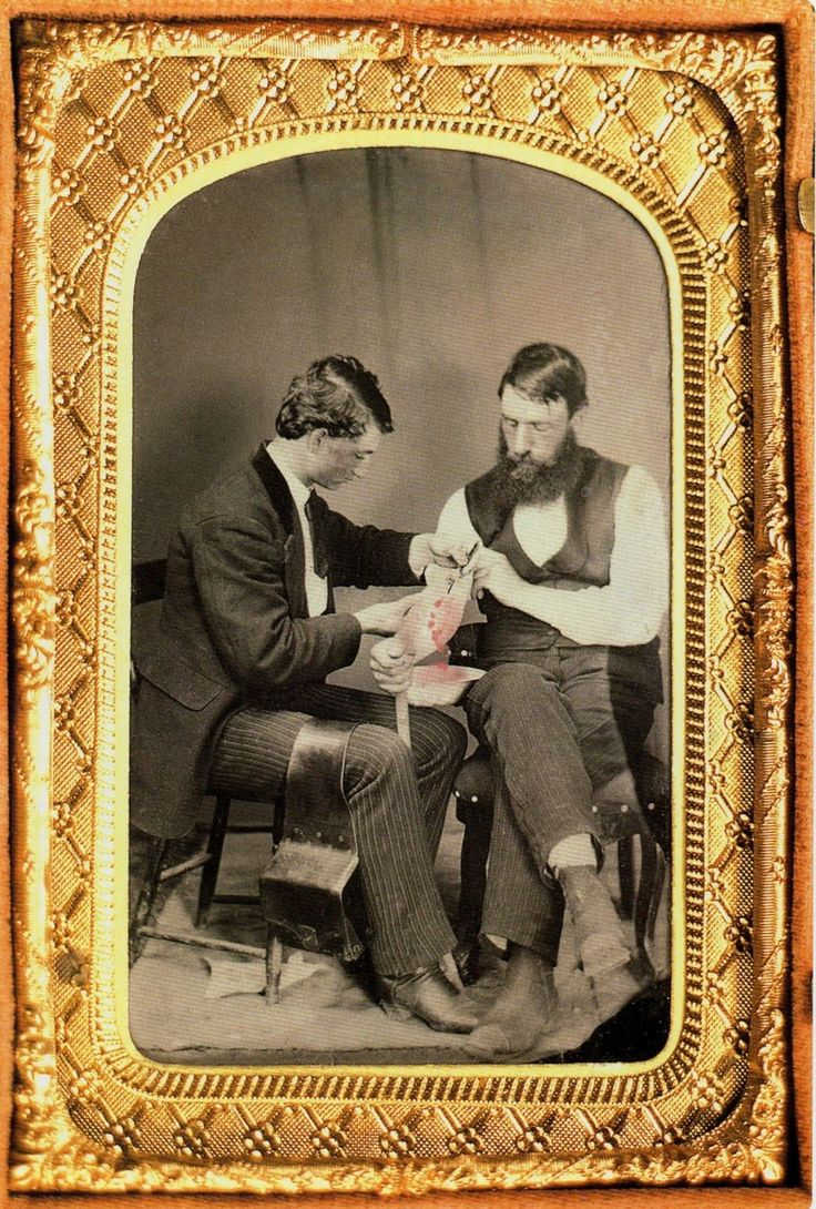 The History Notes England As Papal Fiefdom And Agreement: Ca. 1860, [blood-letting By Phlebotomy: Opening An Arm