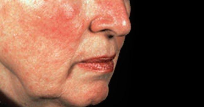 Si Bien No Hay Cura Para La Rosácea Puede Ser Controlada Absolutamente La Rosácea Puede Ser Causada Por In Rosacea Tratamiento Tratamientos Naturales Rosácea