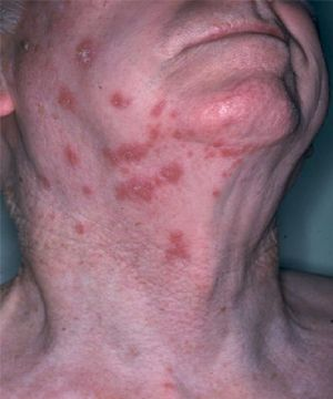 If you've had chickenpox, you face the possibility of getting shingles. Shingles are a painful, blistering rash on your skin that can happen on most any part of your body. The risk of getting shingles increases as you get older. Chickenpox and shingles are caused by a virus belonging to the herpesvirus family. After you've […]