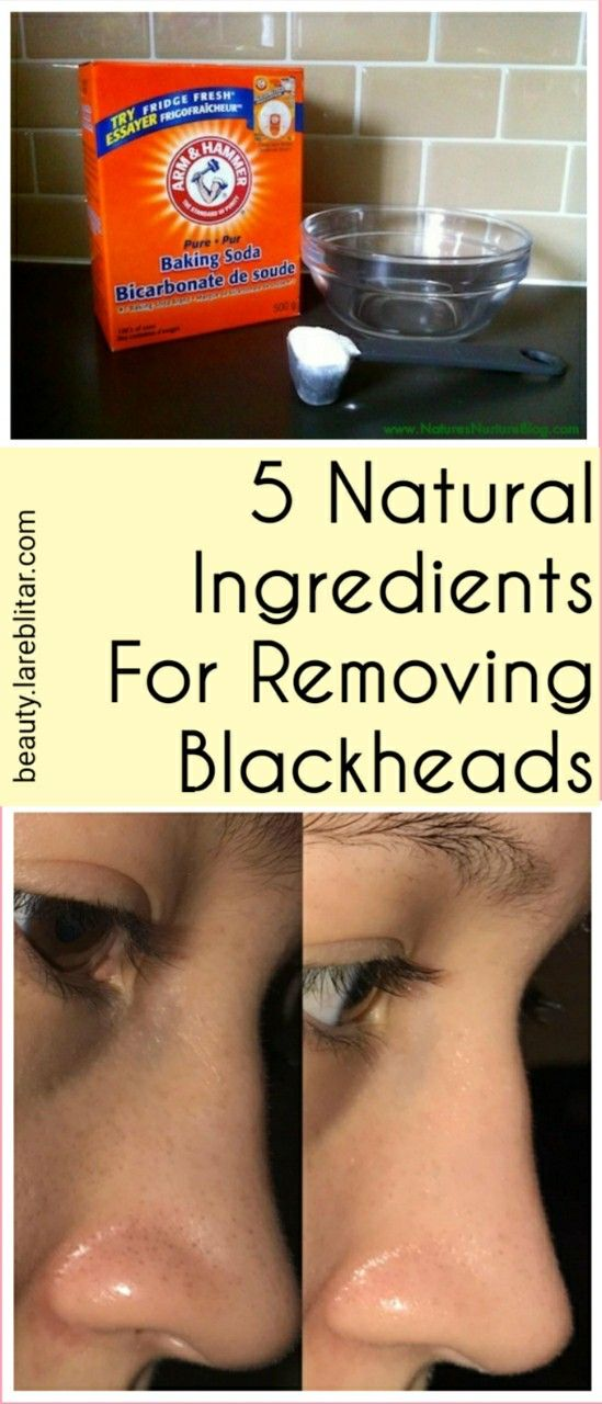 5 Natural Ingredients For Removing Blackheads