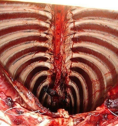 Interior view of a rib cage