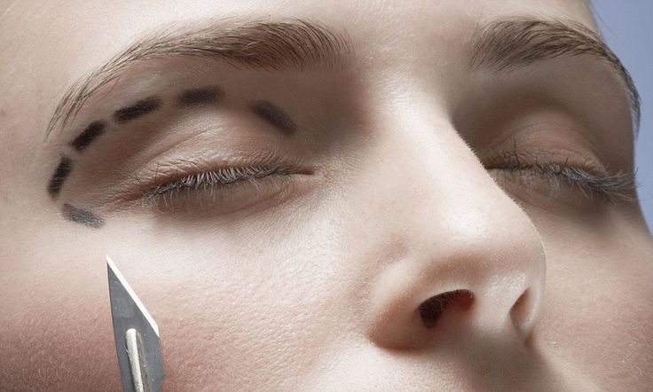 Could an eye-lift cure chronic headaches? How migraine sufferers are turning to plastic surgery for relief