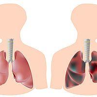 Lungenleiden Schüssler Salze Nr. 4 Kalium chloratum D6 (Schleimhaut-Zellaufbau) Nr. 6 Kalium sulfuricum D6 chronische Erkrankung Nr. 7 Magnesium phosphoricum D6 leichteres Abhusten gegen entstehenden Spasmus beim Husten) Nr. 8 Natrium chloratum D6 (Regenerator des Flüssigkeitshaushaltes) Nr. 14 Kalium bromatum D6 Lungenschleimhautreizung Reizhusten) Nr. 18 Calcium sulfuricum D6 ständigen Entzündungen im Lungenbereich) Nr. 21 Zincum chloratum D6 (Aufbau und Stimulierung des Immunsystems)