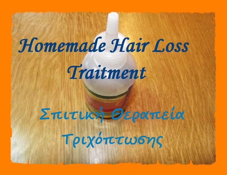 Homemade Hair Loss Traitment - Σπιτική Θεραπεία Τριχόπτωσης