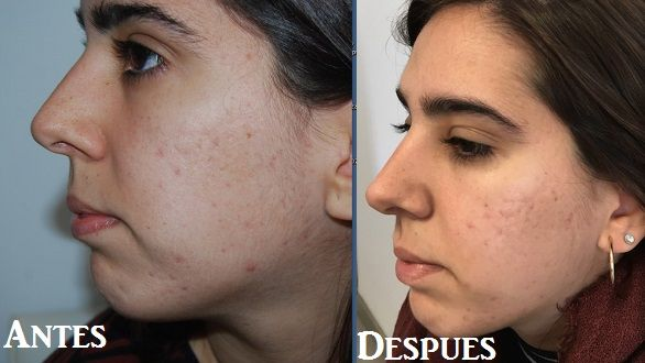 Peeling químico médico acné