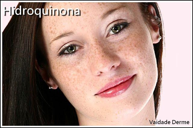 Hidroquinona Para Clarear a Pele de Verdade - Hidroquinona é um composto orgânico aromático, é um difenol, substância eminente redutora. A hidroquinona (1,4-benzenodiol) é um agente despigmentante da pele. É utilizada topicamente no tratamento de despigmentação de manchas dermatológicas como melasmas, sardas, lentigos senis, hiperpigmentação pós-inflamatória, dermatite de berloque.