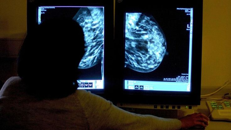 A survey of women with breast cancer has found those with private health insurance had higher out-of-pocket costs than those without.