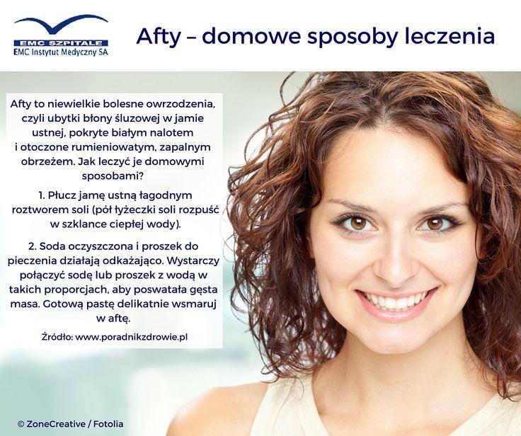 Domowe sposoby leczenia aft w jamie ustnej.