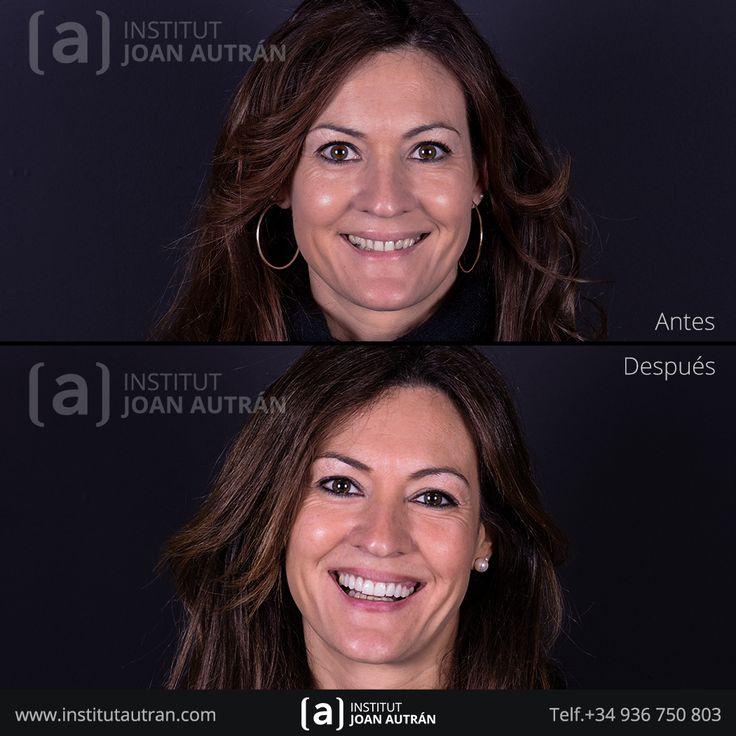 Carillas dentales Top Smile® en Institut Joan Autrán