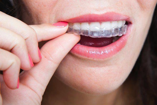 #Un tratamiento de ortodoncia cómodo y transparente es posible - LaCapital.com.ar: LaCapital.com.ar Un tratamiento de ortodoncia cómodo y…