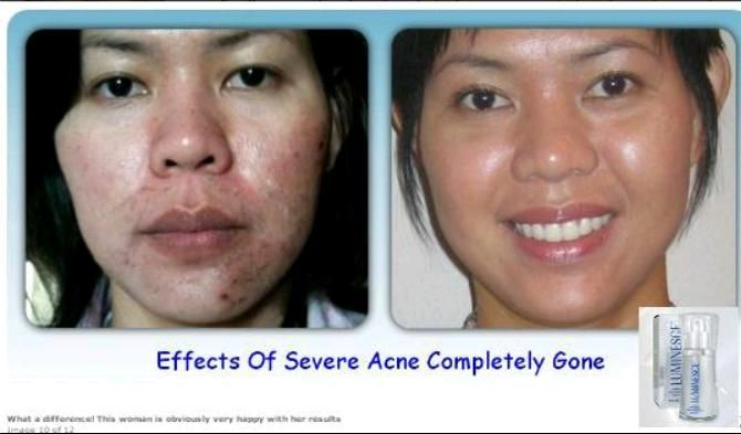 Before and after Luminesce, Stem Cell Serum. http://youtu.be/e5RWZafotSw www.agelessnow.club
