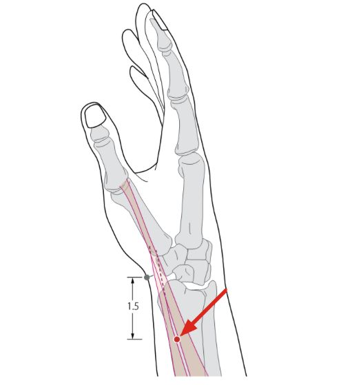 1000+ images about Acupuncture points & Meridians on ...