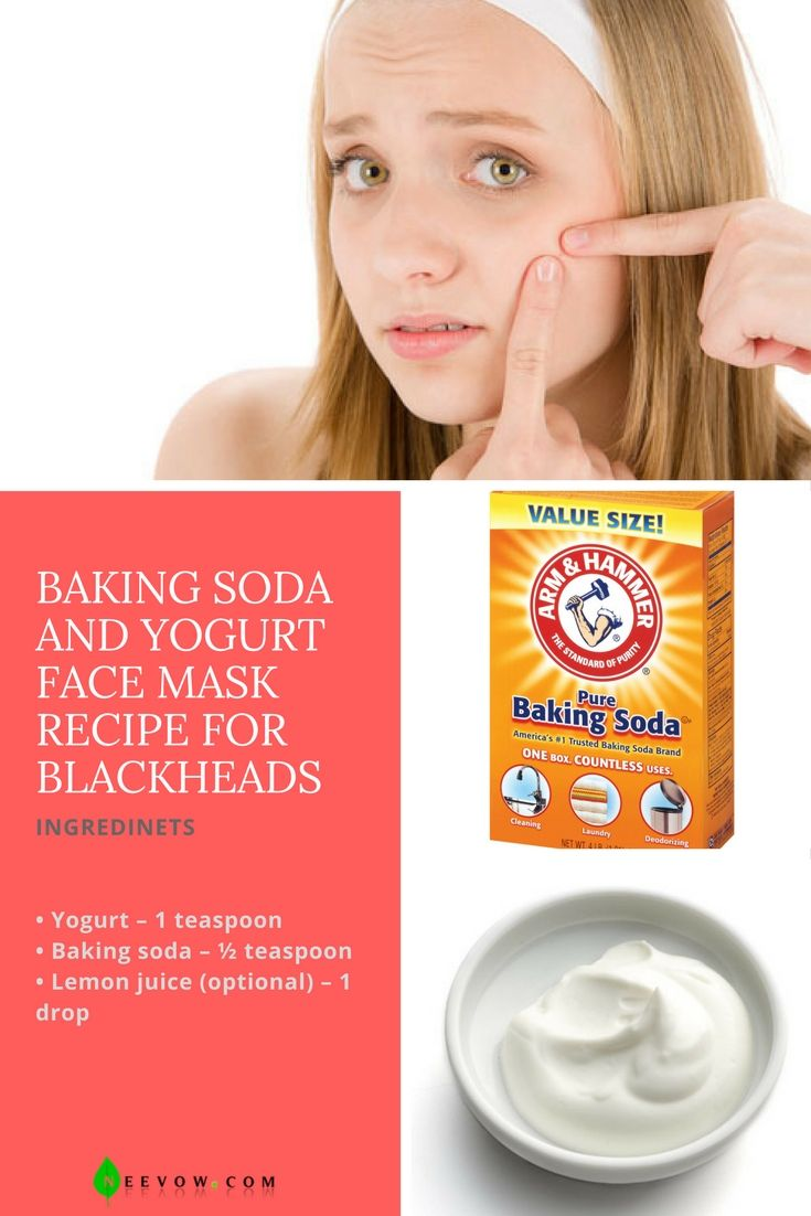 how to get rid of blackhead scars on face