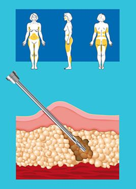 Dry LipoSuction - A technique that is proved to be dangerous