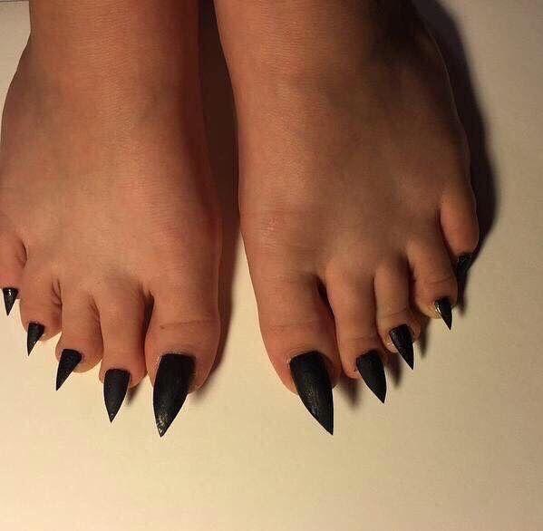 Sharp toenails!  www.drfoot.co.uk