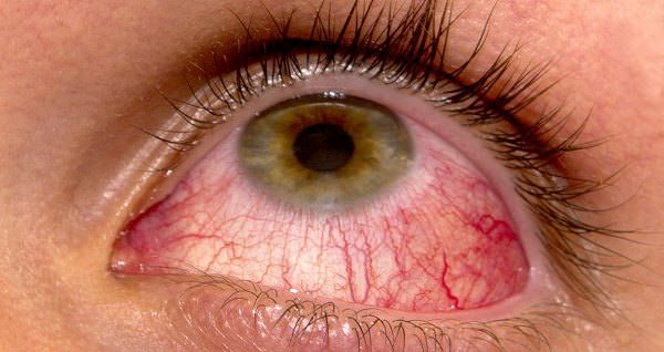 How to Cure Pink Eye? Everyone experiences pink eye once in a while. Pink eye or can say Conjunctivitis is highly contagious that is caused by bacteria or virus. It is a ve...