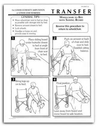 ot images of exercises for upper extremity amputees
