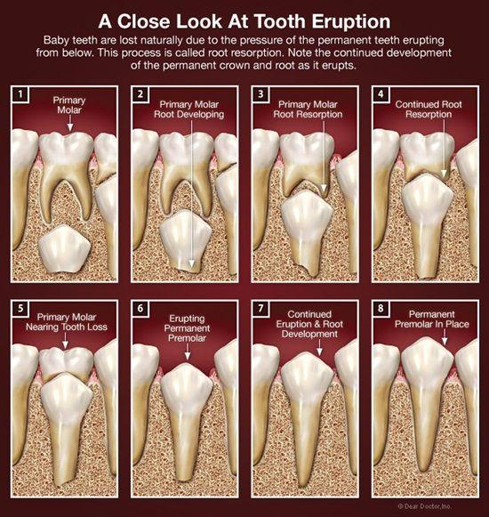 Una mirada cercana a la erupción del diente. Los dientes de leche se pierden de forma natural debido a la presión de los dientes permanentes en erupción desde abajo. Este proceso se denomina reabsorción radicular. Tenga en cuenta el desarrollo continuo de la corona y la raíz permanente, ya que entra en erupción.