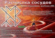 Став Расчистка сосудов. Автор Izmir