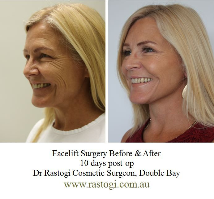 This beautiful patient was unhappy with the character lines around her eyes and mouth and wanted to look fresh and young. Dr Rastogi performed Facelift surgery and here's the Before & After Transformation at 10 Days Post Op. The patient is ecstatic and has healed remarkably well and surprised at the minimal swelling a bruising (mitigated by Dr Rastogi's 'Ultra Short Recovery Technique'.   For more information on Facelifts, contact Dr Rastogi's clinic on +61 2 9362 1426