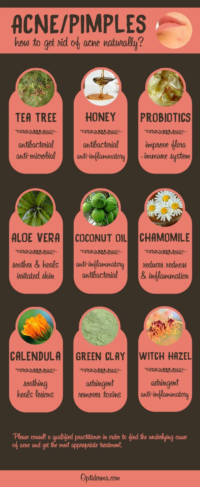 The Best Natural Remedies for Acne & Pimples (Infographic).  Try Tea Tree essential oil, manuka honey, probiotics, aloe vera, coconut oil, chamomile, calendula, green clay and witch hazel!   To get rid of acne once and for all, check this out: http://www.