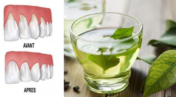 Le recul des gencives peut être assez alarmant. Non seulement c'est douloureux, mais cela peut aussi conduire à des poches, ou des écarts entre vos dents et la gencive, permettant l'accumulation de bactéries nocives. Selon WebMD, cela peut conduire à des dommages graves des tissus de soutien et de la structure osseuse de vos dents …