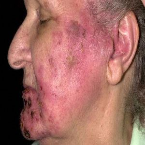 What can stop the itch of shingles on the face & scalp
